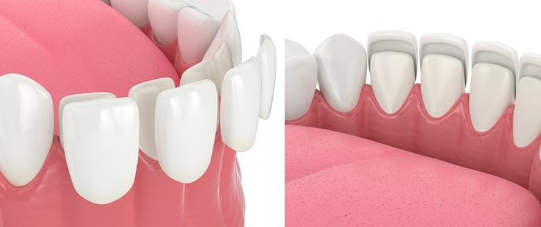 Faccete dentali studio dentistico a Ravenna