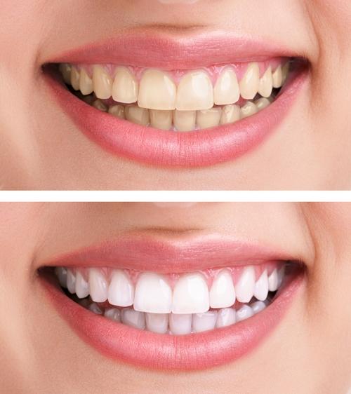 Studio dentista Ravenna