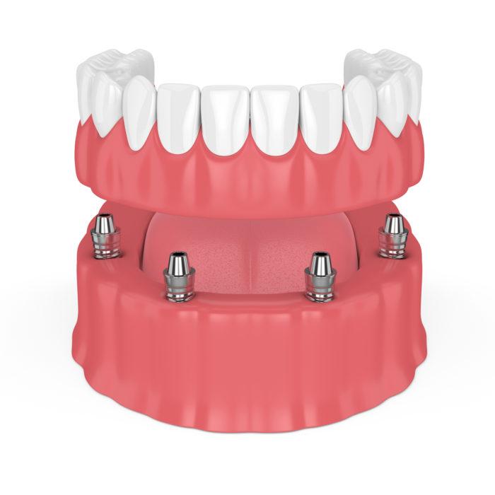 Protesi dentali toronto all on four